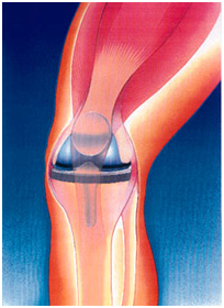 Total Knee Replacement Surgery India, Surgery Activities, Knee Pain