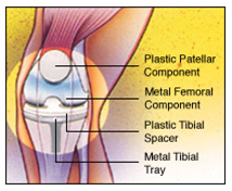 Total Knee Replacement Surgery India, Total Knee Replacement Surgery Risks
