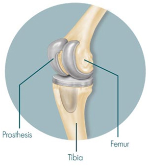 Unilateral Knee Replacement, Unilateral Knee India, Primary Unilateral