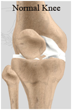 Unicondylar Knee Replacement, Unicondylar Knee Replacement India