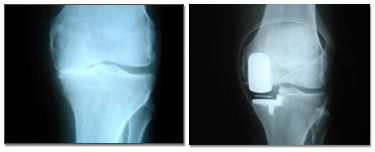 Unicondylar Knee Replacement, Knee Pain, Knee Disability, India Hospital Tour