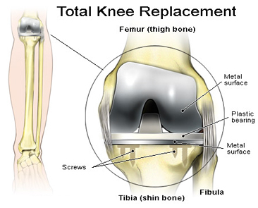 Knee Replacement Abroad, Low Cost Knee Replacement India, India Knee Pain