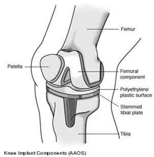 Knee Replacement Implant, Knee Replacement Implant India, Knee Joint Replacement Overseas