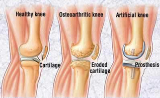 Knee Replacement India,Knee Replacement Surgery India Knee Replacement Surgery