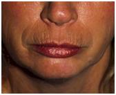 Only facial laser procedure writer