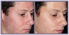 Laser Surgery India Acne Removal offers info on Cost Acne Removal Laser Surgery India, Laser Therapy Reduces Facial Acne India