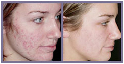 Laser Surgery India Acne Removal offers info on Cost Acne Removal Laser Surgery India, Laser Hair Removal India
