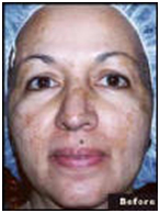 Laser Surgery India Skin Age Spot Removal offers info on India Age Spot Removal India