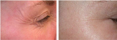 Laser Facial India, Laser Hair Removal India, Laser Treatment India