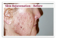 Skin Rejuvenation Laser Surgery India offers info on Laser Skin Rejuvenation India, Laser Facial India, Laser Treatment India