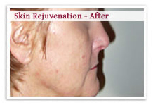 Skin Rejuvenation Laser Surgery India offers info on Laser Skin Rejuvenation India, Laser Hair Removal India