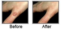 cream for warts on hand