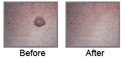 Laser Surgery India Wart Removal offers info on India Wart Removal Surgeons Hospital India, Mole Removal India, Wart Removal India