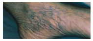 Hair Removal India, Laser Surgery India, Laser Surgery India, Cosmetic Laser Surgery India