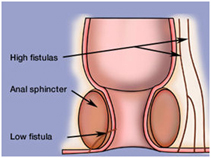 Anal Fistula Surgery India offers info on Low Cost Anal Fistula Surgery In India