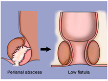 Anal Fistula Surgery India offers info on Low Cost Anal Fistula Surgery In India, Anal Fistula Surgeons India, Piles India