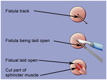 Anal Fistula Surgery India offers info on Low Cost Anal Fistula Surgery In India, Hemorrhoids India, Fissure India, Fistula India