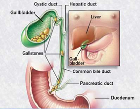 a removing gallbladder side effects