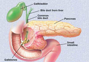 primary sclerosing cholangitis overview and update