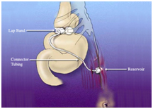 Laparoscopic Banding Surgery offers info on Laparoscopic India, Laparoscopic Banding India, Risks Of Laparoscopic Banding Surgery India