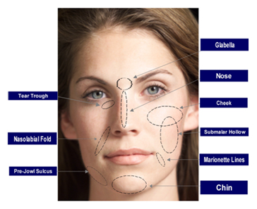 Fillers Treatment offers info on Filler India, Skin Filler Treatment India, Skin Fillers Cosmetic India, Fillers India
