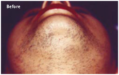 Laser Hair Reduction Treatment offers info on India Laser Hair Removal Advantages India, Hair Reduction India, Hair India