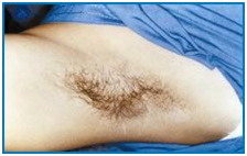 Laser Hair Reduction Treatment offers info on India Laser Hair Removal Advantages India, Hair Reduction India