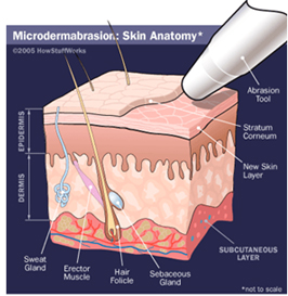 Microdermabrasion Surgery India offers info on Cost Microdermabrasion Surgery India