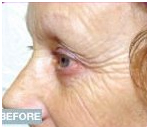Face Lift Treatment India, Face Lifts India