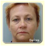 Non Surgical Face Lift India, Non Surgical Face Lift Treatment India, Facial Toning India, Face Exerciser India