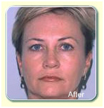 Face Lifts India, Non Surgical Face Lift India, Non Surgical Face Lift Treatment India, Facial Toning India, India Hospital Tour India