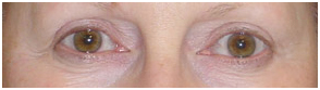 Permanent Makeup Treatment India offers info on Cost Permanent Makeup Treatment India