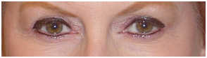 Permanent Makeup India, Cost Permanent Makeup Hospital India, Low Cost Permanent Makeup Treatment Delhi India