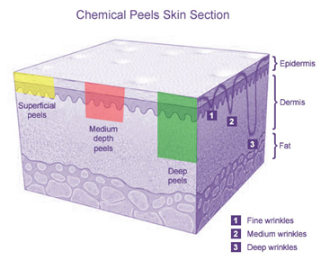Deep Peel Surgery India offers info on Cost Deep Peel Surgery India, Deep Peel Surgeon India, Chemical peel work India, Chemical Peel Procedure India