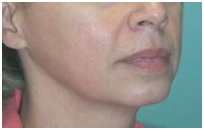 Thermage Face Lift India, Thermage Plastic Surgery India, Thermage Cost India