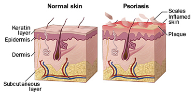Psoriasis Treatment India offers info on Psoriasis Treatment Hospital India, Stem Cell Therapy Psoriasis India