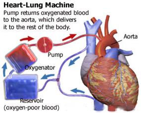 Heart transplantheart transplant surgery indiacost heart transplant heart surgery india india surgery heart transplant india best india surgery price heart ccuart Choice Image