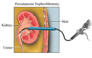Percutaneous Nephrolithotomy Surgery India offers info on Cost Percutaneous Nephrolithotomy Surgery India