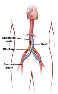 Arterial Bypass Surgery India offers info on Cost Coronary Artery Bypass Surgery India, Coronary Artery Bypass Surgery India