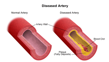Carotid Artery Stenosis Treatment India offers info on Cost Carotid Artery-Stenosis Surgery India, Cost Carotid Artery-Stenosis Hospital India