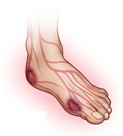 Diabetic Foot Ulcer Treatment India offers info on Affordable Diabetic Foot Ulcer IND India, Efficacy Of RHPDGF Based Gel In Diabetic Foot Ulcers India