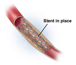 Artery Stenosis India, High Blood Pressure India, Hardening Of The Arteries India, Atherosclerosis India, Nephrotic Syndrome India