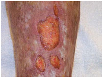 Leg Ulcers Associated With Sideroblastic Anemia India, Medical Publishers India