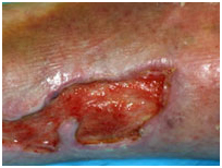 Lower Leg Ulcers Treatment India offers info on Cost Leg Ulceration - Ethnicity India, Medical Publishers India, Scientific Publishers India