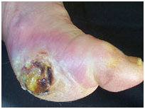 Leg Ulcers Associated With Sideroblastic Anemia India, Scientific Publishers India, Wound India