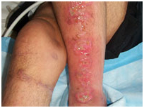 Lower Leg Ulcers Treatment India offers info on Cost Leg Ulceration - Ethnicity India, Leg Ulcers Associated With Sideroblastic Anemia India, Wound India