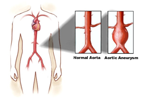 Aortic Aneurysm Repair Surgery offers info on Aortic Aneurysm Surgery India, Aortic Aneurysm Repair India, Safe Aortic Aneurysm Repair India