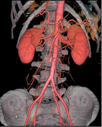 Aortic Aneurysm Repair India, Safe Aortic Aneurysm Repair India, Aortic Aneurysm India, Surgical Treatment Of Disease India