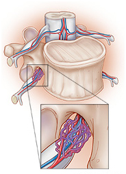 Arteriovenous Fistula Surgery offers info on Fistula Surgery India, Arteriovenous Fistula India