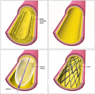 Balloon India, Angioplasty India, Balloon Angioplasty Surgery India, Arteries India